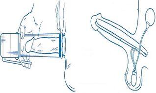 Ar galima padidinti nari su siurbliu Kaip patikrinti vaikina dydi