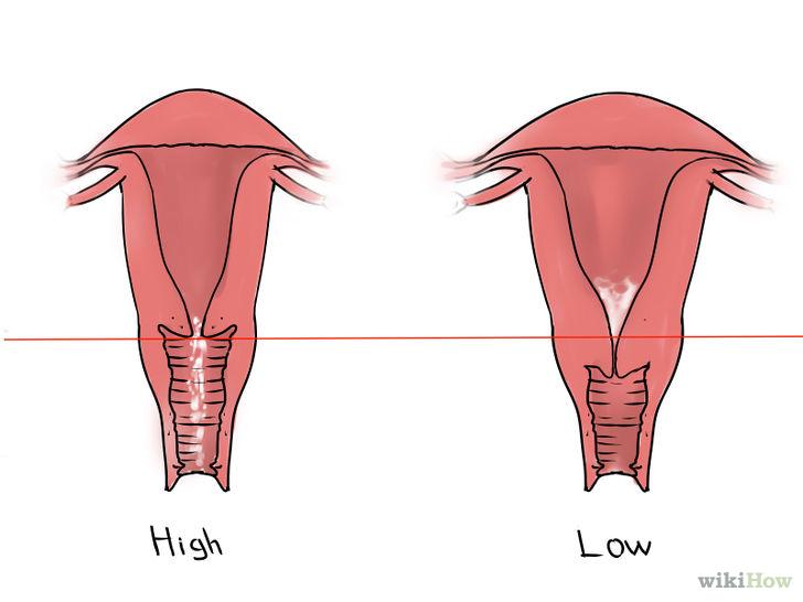 Kaip padidinti ilgio peni Vyriskos formos dydis